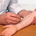 Туберкульоз шкіри – актуальна проблема сьогодення
