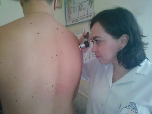 Чернівчанам робили дерматоскопічне обстеження