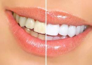 Вплив паління на стоматологічне здоров'я людини