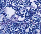Малаcезioз шкіри